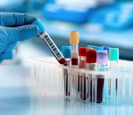 Da bi uradili krvne pretrage više ne morate da idete u laboratoriju